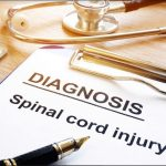 How to Choose a Spinal Cord Injury Attorney
